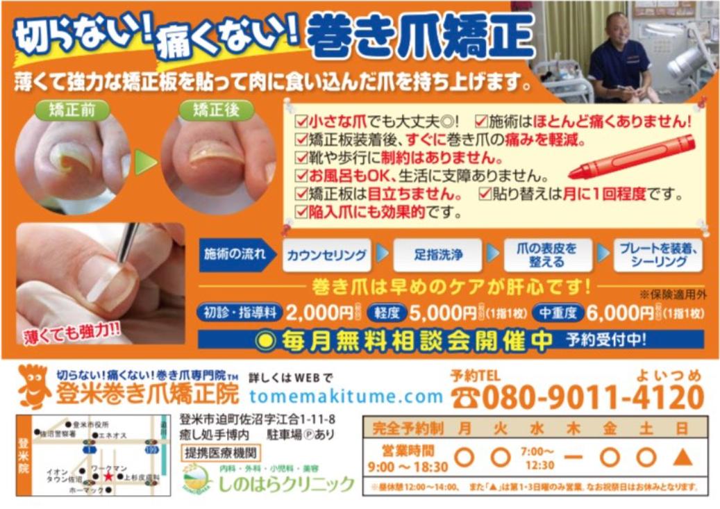 登米市巻爪治療